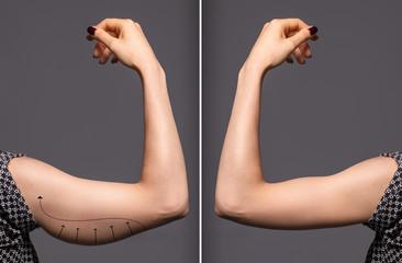 Как убрать обвислость на руках после 40 с помощью одного упражнения