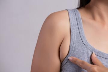 Причины появления подмышечных валиков у женщин