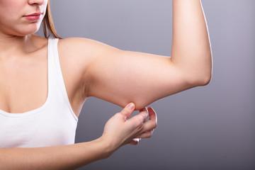 Как избавиться от провисания кожи на руках